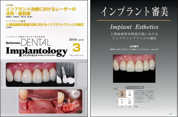 Quintessence DENTAL Implantology vol.23 2016年3月号